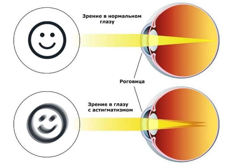 Астигматизм глаз: что это за болезнь, причины и симптомы, тесты, фото