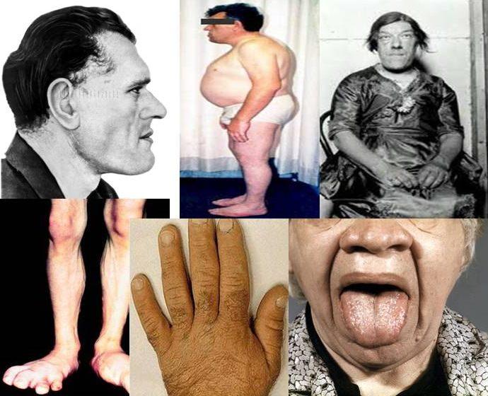 Акромегалия - симптомы, причины, лечение, диагностика, фото