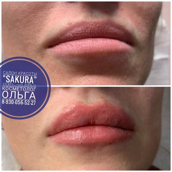 Тренды инъекционной косметологии: губы бантиком, профиль джоли