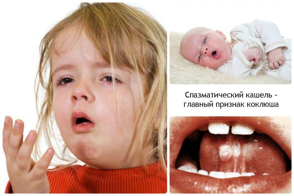 Коклюш - описание болезни