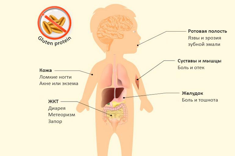 Целиакия: симптомы у взрослых и детей, лечение и диагностика
