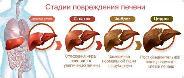 Диффузные изменения в печени что это такое