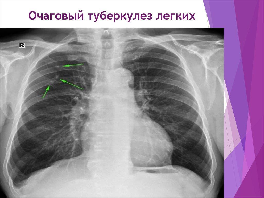 Отличие туберкулеза и рака легких по симптомам, анализам и рентгенологическому снимку