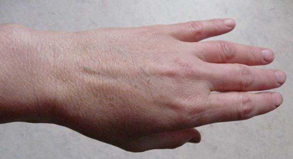 Цыпки на руках и ногах не приговор. лечение и средства - omolodet