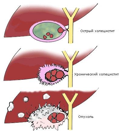 Холецистит — причины, симптомы, диета и лечение холецистита