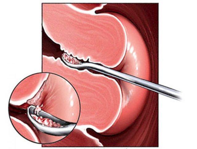 Гистероскопия матки - что это такое, как подготовиться и как делают операцию
