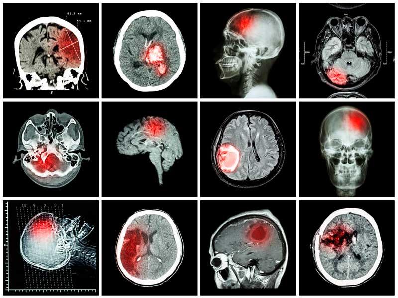 Кт головного мозга: что показывает, кому делать нельзя