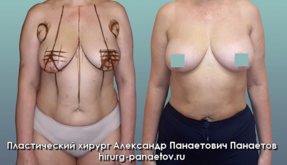 Маммопластика. правда о маммопластике и реальные отзывы.