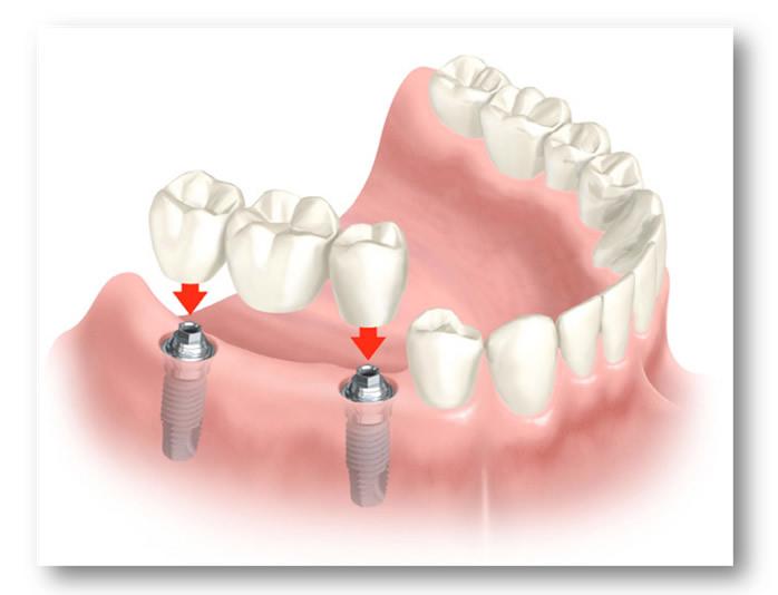 Протезирование зубов: с чего начать, как делают зубные протезы и какие бывают виды, а также все этапы подготовки к процедуре установки