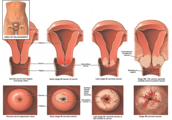 Наболело: как правильно лечить эрозию шейки матки