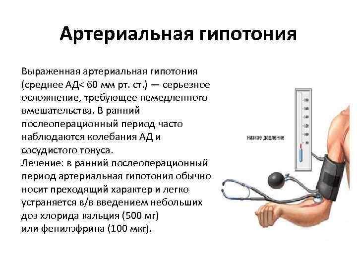 Гипотония, артериальная гипотензия причины, лечение, симптомы