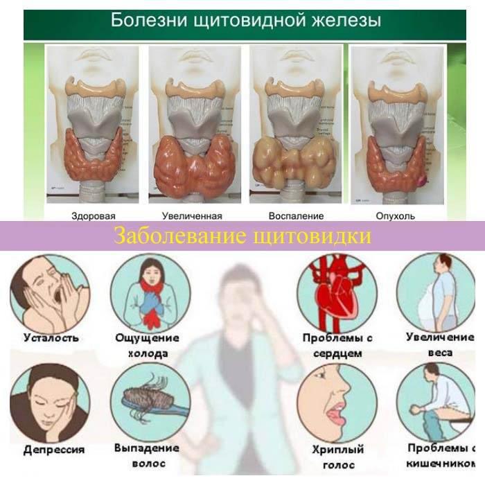 Симптомы гиперактивности щитовидной железы у человека | pro shchitovidku