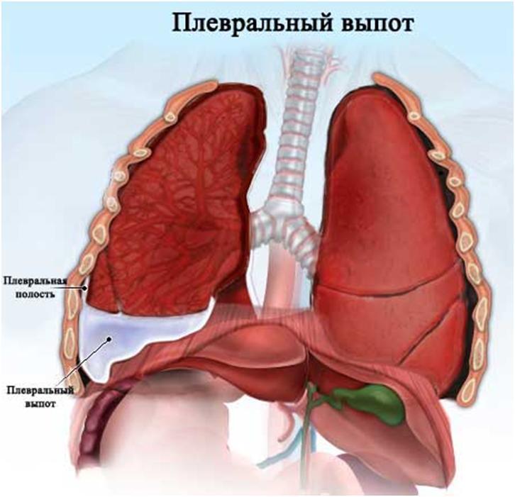 Лечение плеврита легких и его симптомы