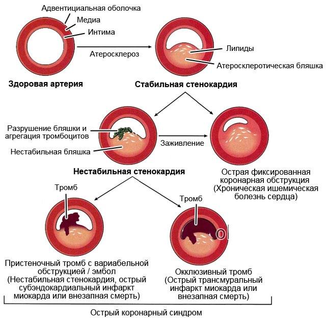 Асистолия сердца: что это такое, причины, симптомы, первая и неотложная помощь, последствия