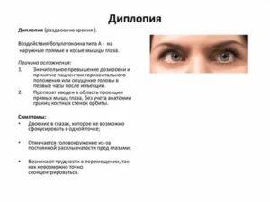 Ретиношизис сетчатки глаза: симптомы, лечение, причины, осложнения и профилактика