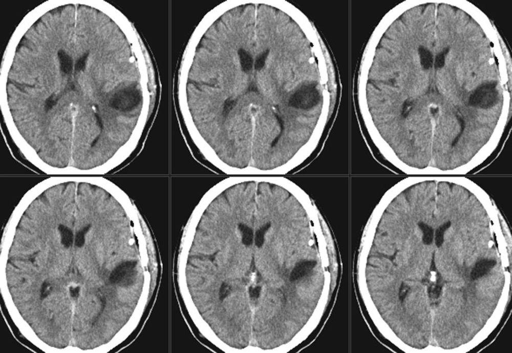 Микроангиопатия головного мозга: что это такое, церебральная, лечение, синдром, признаки