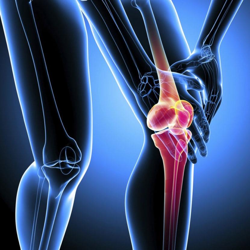 Остеоартроз: симптомы, лечение, степени – напоправку