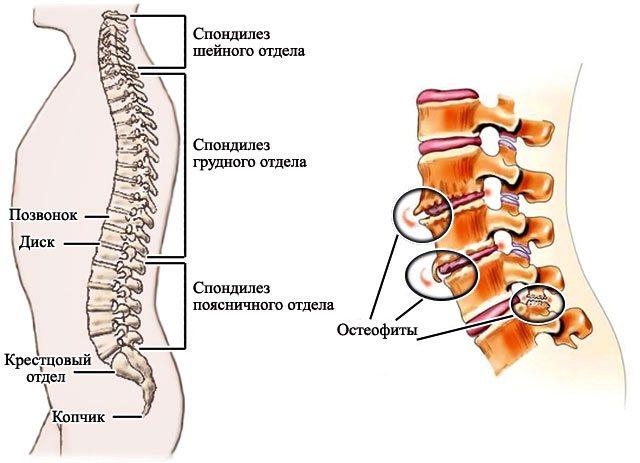 Спондилоартроз шейного отдела позвоночника: симптомы лечение