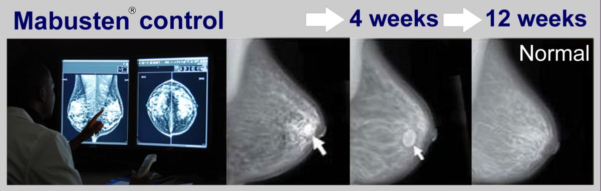 Фиброзно-кистозная мастопатия молочной железы: что это такое, симптомы болезни, как её лечить