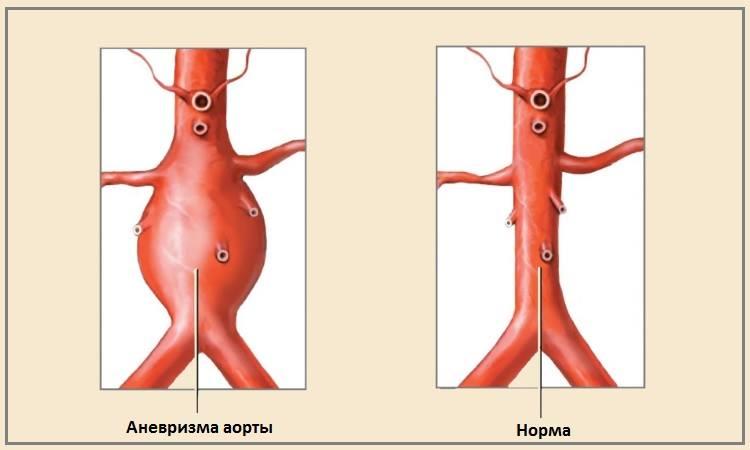 Что такое аневризма сердца: симптомы и причины, методы лечения и прогноз жизни