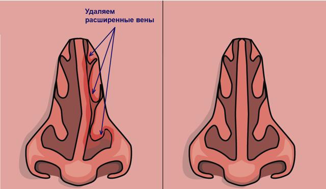 Особенности эндоскопической септопластики носовой перегородки
