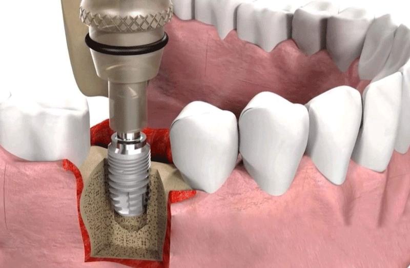 Кт зубов при имплантации: что такое и почему важно проводить - много зубов