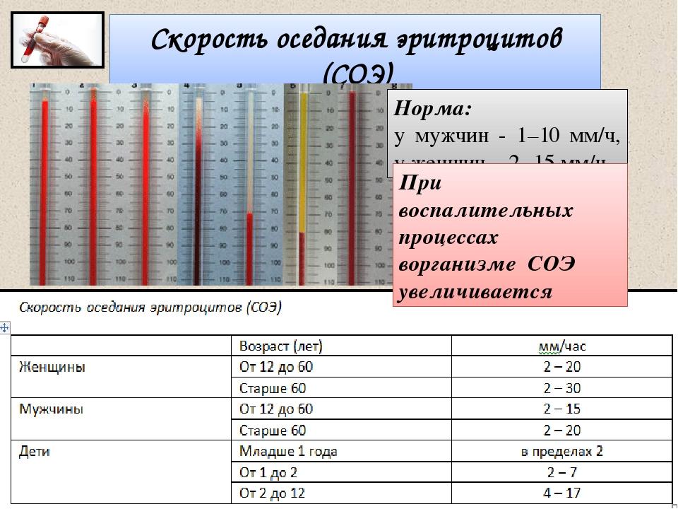 Общий анализ на соэ. что такое соэ в анализе крови и о чем может говорить повышенный или пониженный уровень показателя?