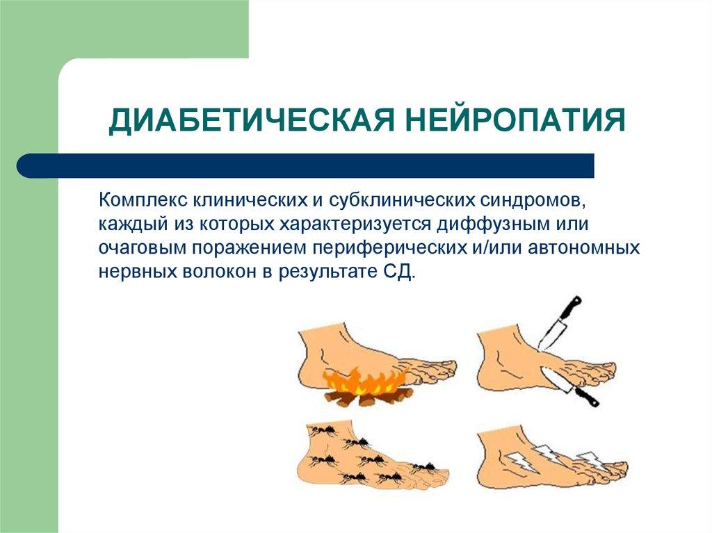 Диабетическая полинейропатия нижних конечностей: симптомы, лечение, препараты