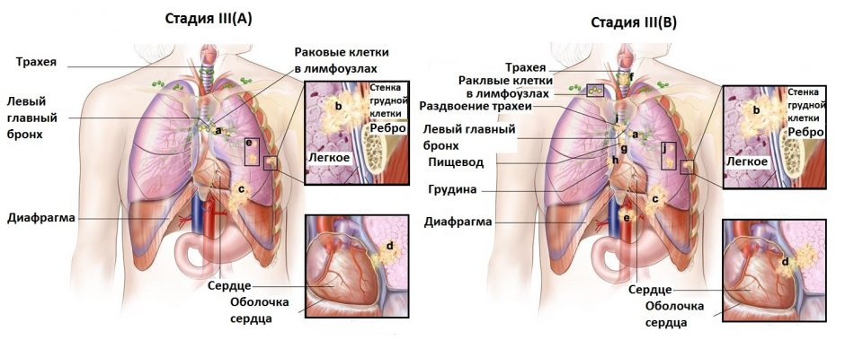 Метастазы, признаки, как выглядят, симптомы
