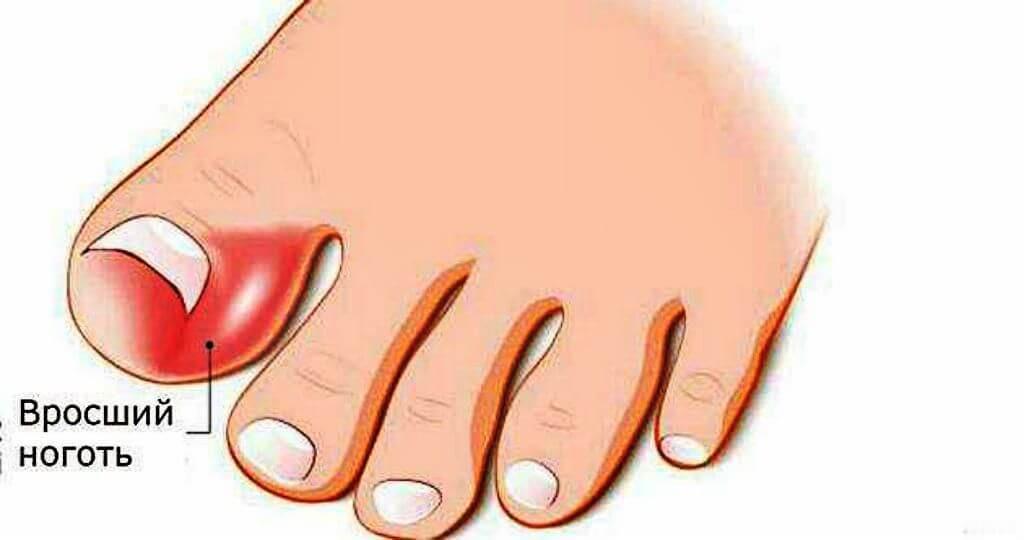 Приготовление мази от вросшего ногтя в домашних условиях