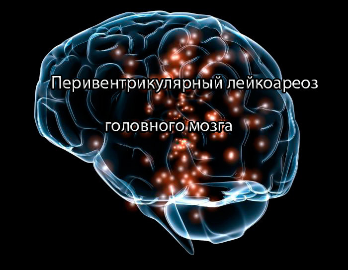 Лейкоэнцефалопатия головного мозга: что это такое, симптомы, лечение