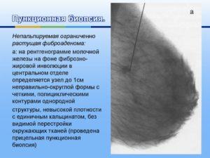 Фиброзно жировая инволюция молочных желез: симптомы и лечение