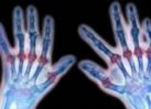 Как начинается ревматоидный артрит?