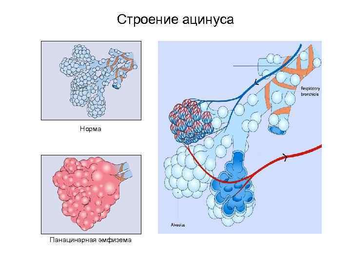 Виды эмфиземы легких: парасептальная, центрилобулярная, панацинарная, викарная, лобарная и врожденная