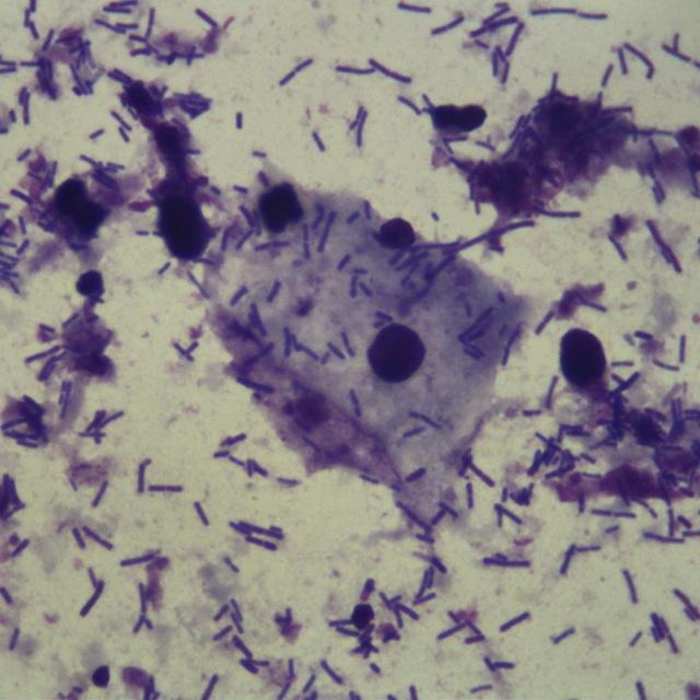 Лептотрикс — лептотрихозleptothrix (leptotrichia)