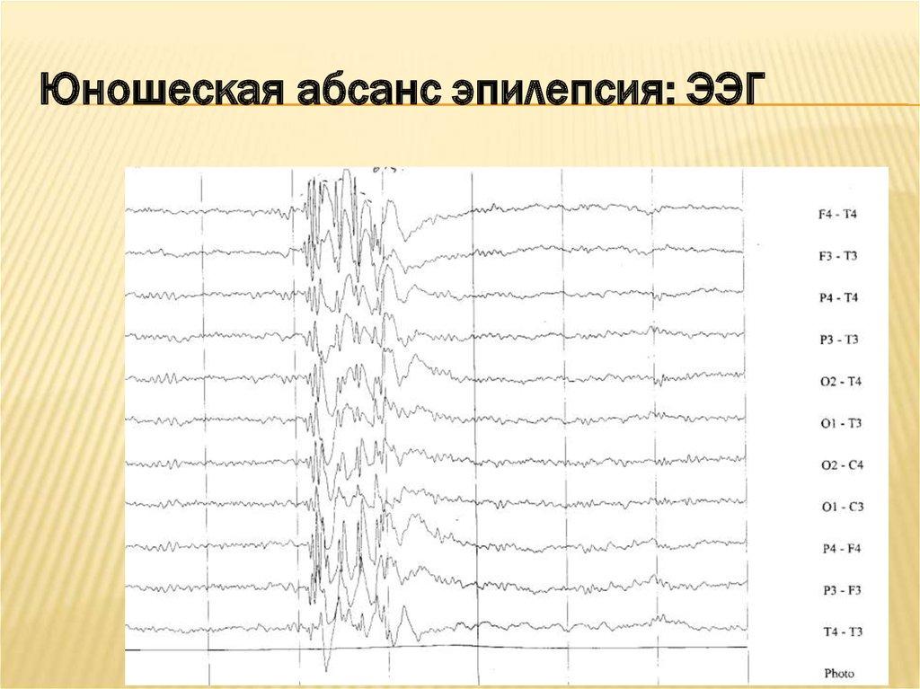 Ээг (электроэнцефалограмма) головного мозга - что это за обследование и что оно показывает?