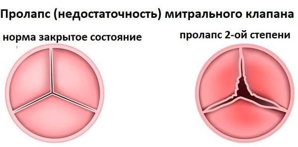 Пролапс митрального клапана 1 степени лечение