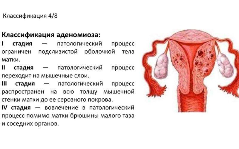 Эндометриоз. причины, симптомы, современная диагностика, эффективное лечение болезни.