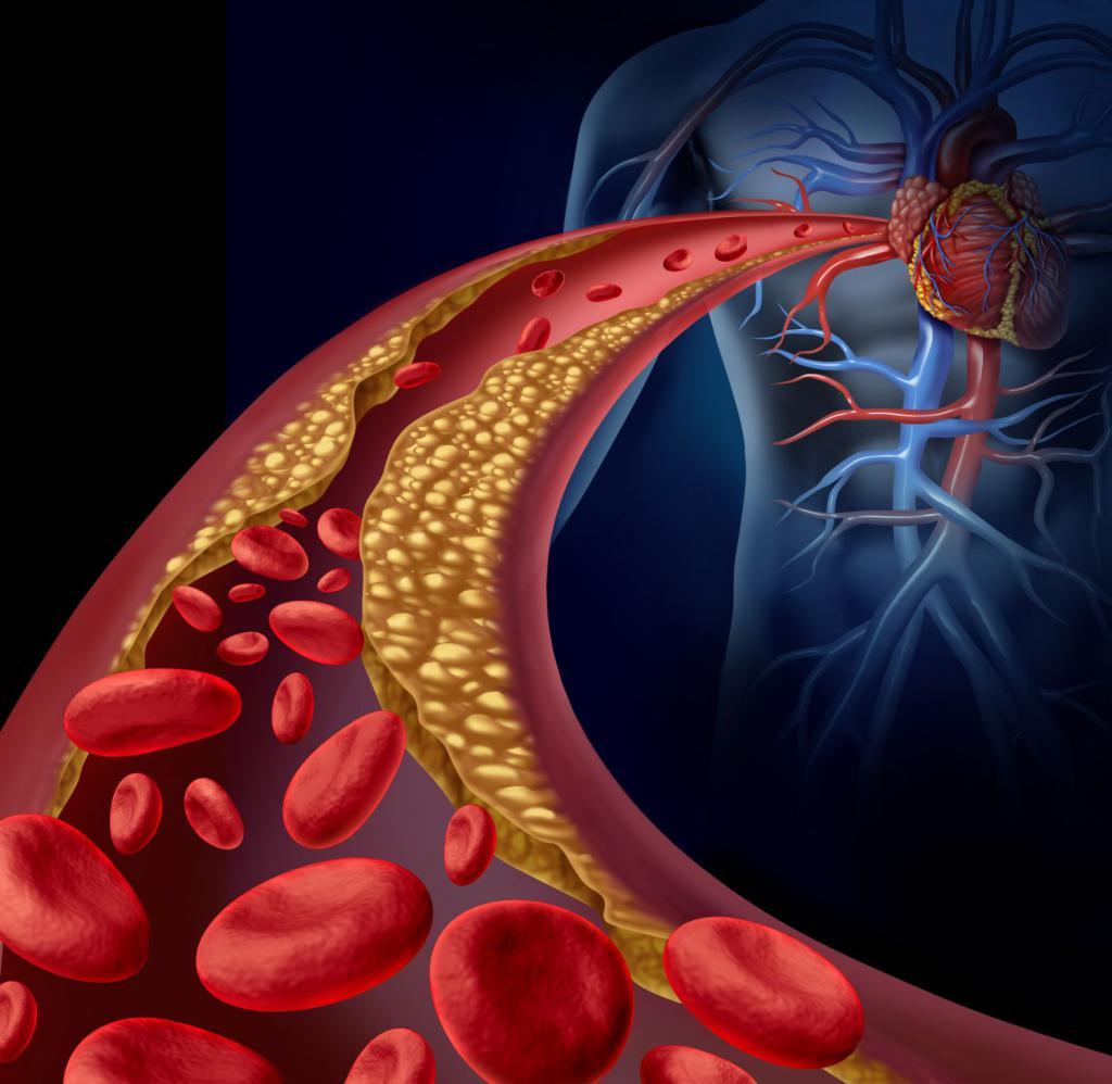 Гиперлипидемия: симптомы, диагностика, лечение. лечение гиперлипидемии смешанная гиперлипидемия
