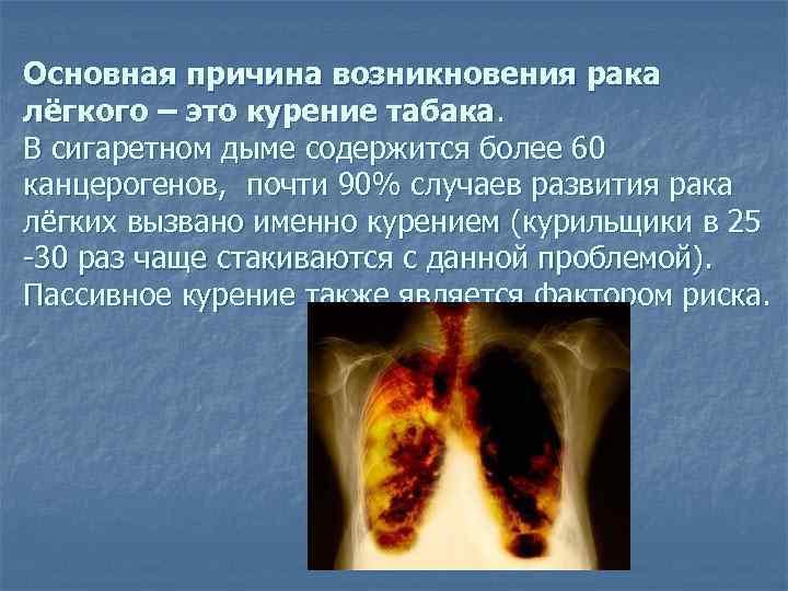 Онкология - что это такое, рак и онкологическое заболевание