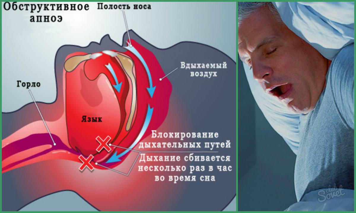 Знакомимся с синдромом обструктивного апноэ сна
