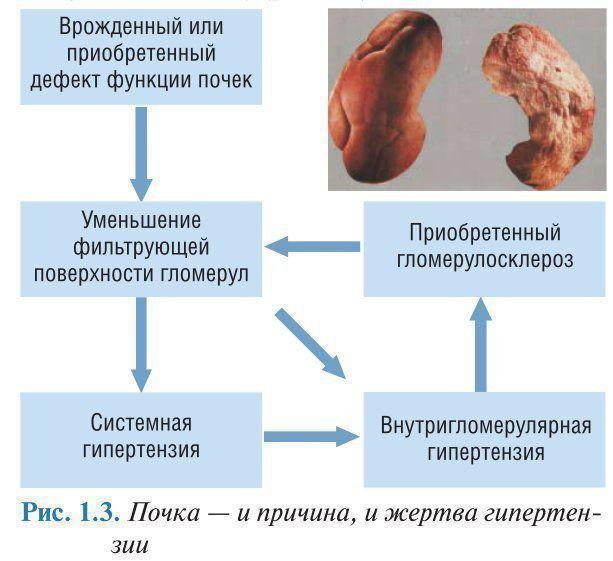 Эссенциальная гипертензия — википедия. что такое эссенциальная гипертензия