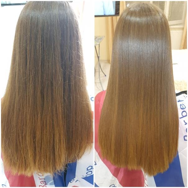 Биксипластия для волос – что это за процедура
