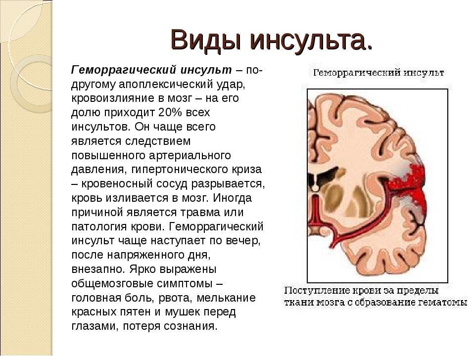Апоплексический удар, причины, симптомы, методы лечения