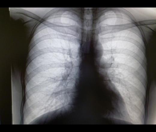 Метатуберкулезные изменения в легких лечение - wikimedotvet.online