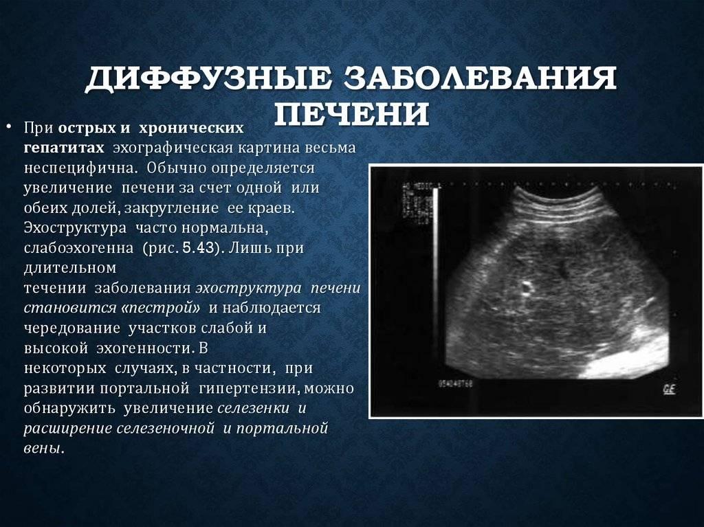 Диффузные изменения в поджелудочной железе