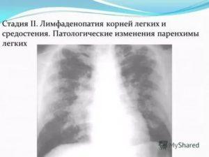Лимфаденопатия средостения легких: что это такое и как лечить