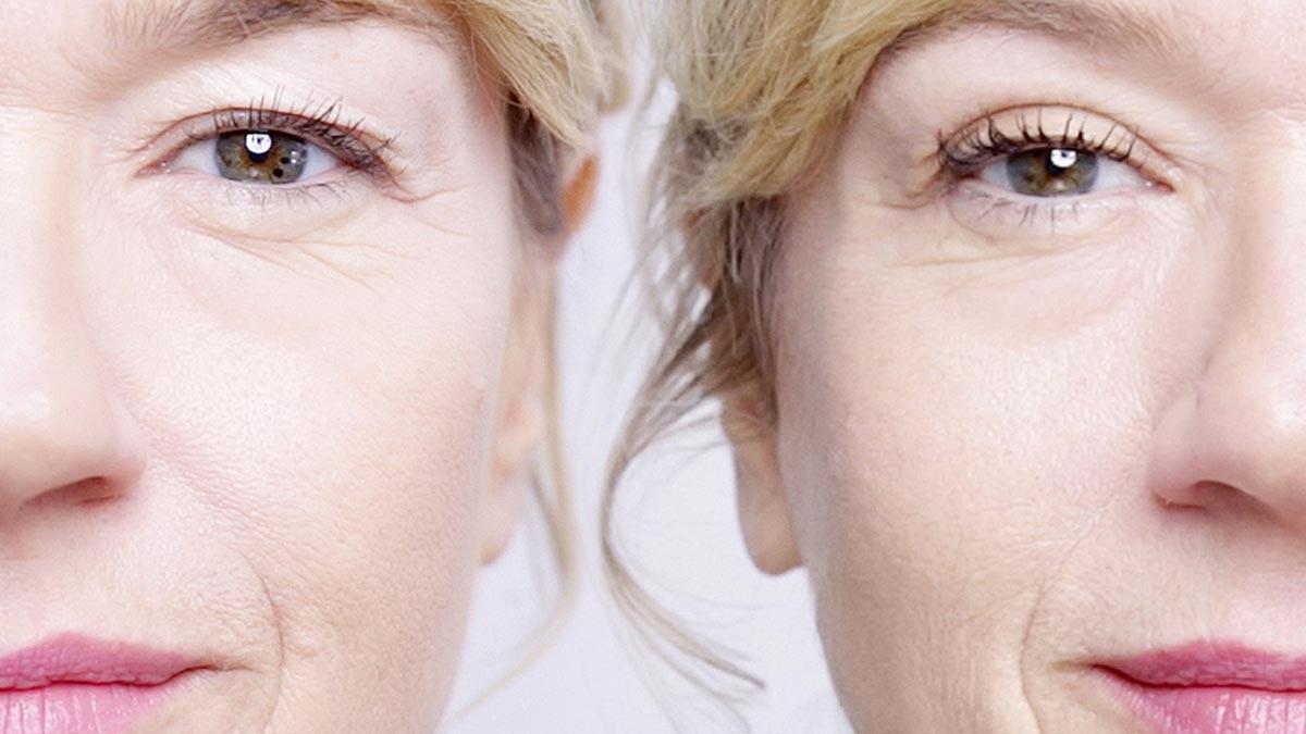 Птоз верхнего века: что нужно знать косметологу