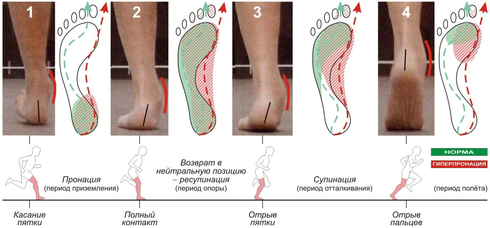 Супинация. для полноты тренировки мышц предплечий может оказаться весьма полезным знать, что такое пронация и супинация кисти.