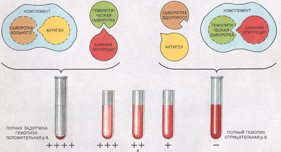 Реакция вассермана для диагностики сифилиса - проведение теста, причины ложноположительных результатов